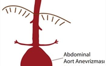 Aort Hastalıklarında Erken Teşhis Hayat Kurtarıyor