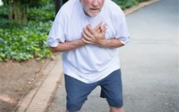 Aort anevrizması nedir, belirtileri nelerdir?