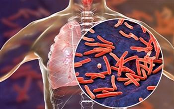 Koronavirüsün Gölgesinde Kalan Gizli Tehdit: Tüberküloz